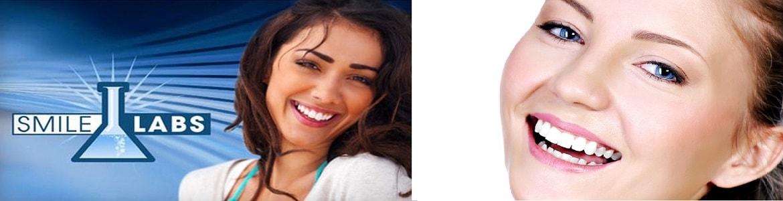 Smile Labs Teeth Whitening